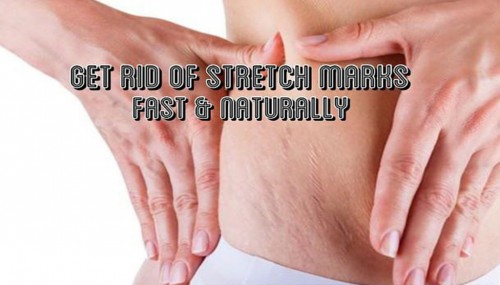 Get Rid Of Strech Marks Fast And Naturally
