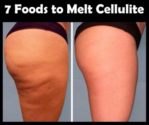 7 Foods To Melt Cellulite